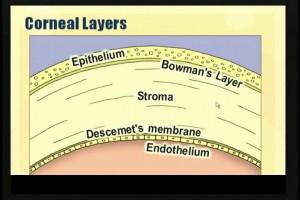 Laser Vision Correction and the Cornea
