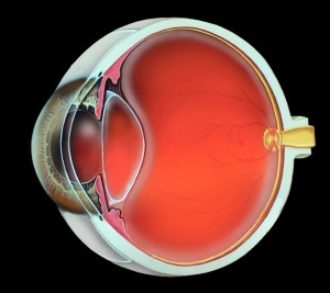 Eye which does not need cataract surgery